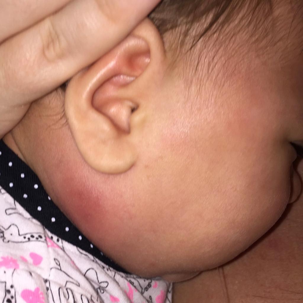 neck mass infection